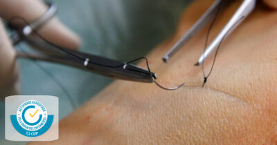 Suturas fundamental e ferida cirúrgica | COIMBRA | 22 Setembro